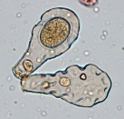 Hyalosphenia elegans, a species of testate amoeba