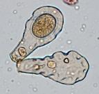 Hyalosphenia elegans, a species of testate amoeba