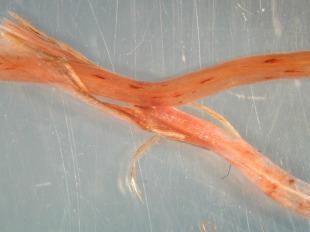 Eriophorum angustifolium root