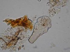 Hyalosphenia elegans